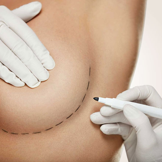 Brystforstørrelse i Tyrkiet İstanbul