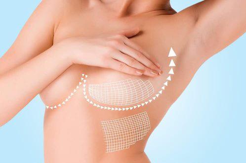 Brystforstørrelse i Tyrkiet