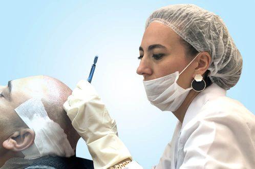 Hårtransplantation i Tyrkiet